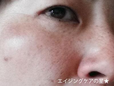 オルビスユートライアルセット【お試し23日目】