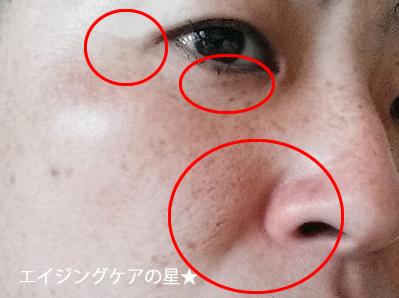 【どろあわわ使用前】の小鼻・毛穴の黒ずみ