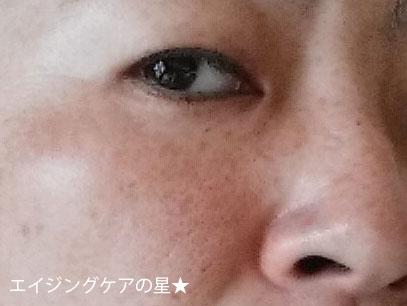 ビーグレン美白セット口コミ(お試し21日目)