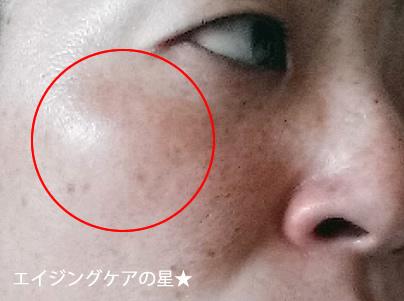 ビーグレンの口コミ【シミ消し25日の効果】40歳画像つき