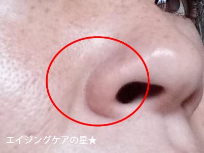 どろあわわで、小鼻・毛穴の黒ずみは、どうなった?口コミ(7日目の効果)