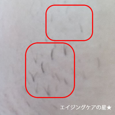 TBCワキ脱毛の口コミ<施術3回目>の効果は?