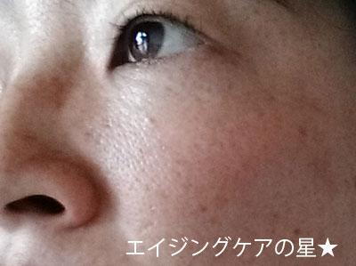 米肌【お試し前の】毛穴
