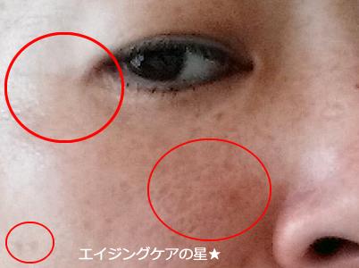 ▼アスタリフトホワイトのシミ効果は!?(お試し7日目)
