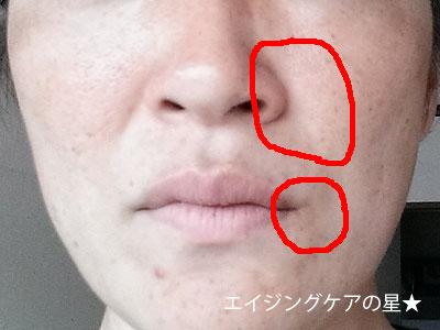 ほうれい線に即効性のある美容液は?→ROSYがおすすめ