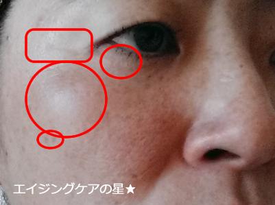 ▼【お試し14日目の効果】AGOSリッチエッセンス/アイクリーム
