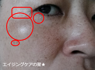 【お試し前】AGOSリッチエッセンス/アイクリーム