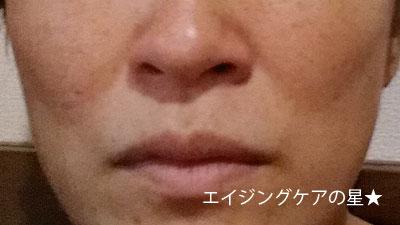 【使用前】トリア スキン エイジングケアレーザー