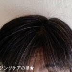 女性用育毛剤【デルメッド】ヘアエッセンス 使用17日目の効果