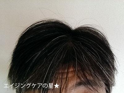 女性用育毛剤【デルメッド】ヘアエッセンス 使用前