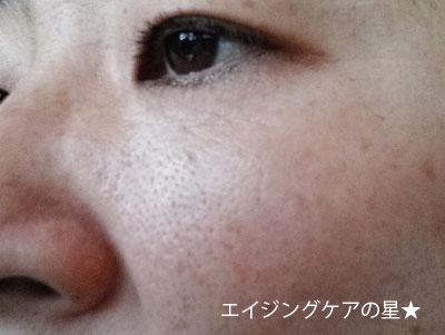 【使用前】 [ディセンシア]アヤナスBBクリーム