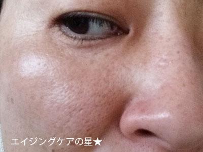 【使用前】[コーセープロビジョン]澄肌CCクリーム