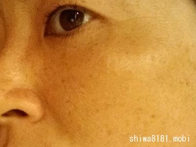 【リニューアル前】デルメッド美白化粧品の効果は?(お試し21日目)