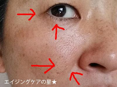 [米肌]活潤リフトエッセンスでシワ、ほうれい線対策(お試し8日後の効果を口コミ)