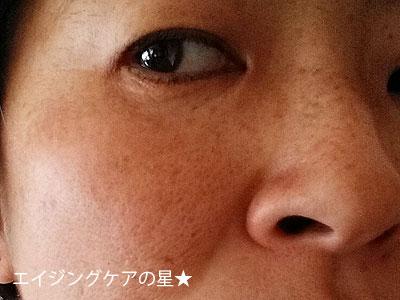 【お試し前】[米肌]活潤リフトエッセンス