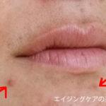 顎ニキビ・口周りニキビの治し方【2つ】の対策