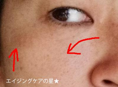 【お試し12日目】[アンプルール]ラグジュアリーホワイト使用12日目