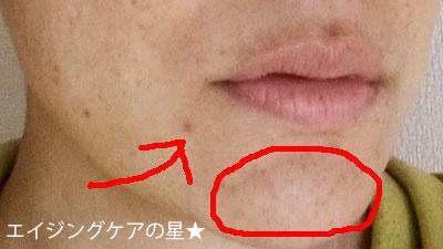 顎ニキビとニキビ跡に、ビーグレンがよさげな【4つの理由】(お試し1日目)