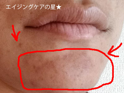 [ビーグレン]ニキビ/ニキビ跡の効果を口コミ(お試し19日目)