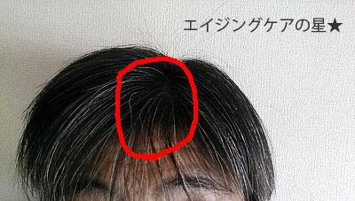【お試し前】長春毛精の口コミ