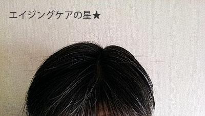 長春毛精の効果(お試し43日目)