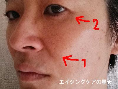 【お試し24日目】[ビーグレン]たるみ・ほうれい線ケア トライアルセットの効果