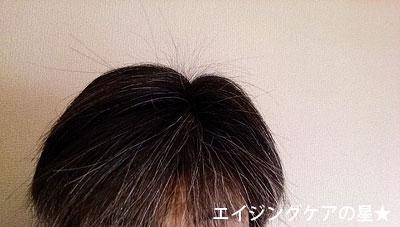 【お試し208日後】黒髪スカプル・プロ(シャンプー)の白髪を減らす効果
