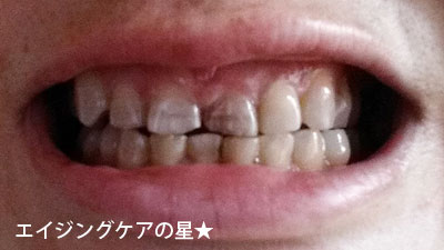 【80日目】ブラニカのホワイトニング効果