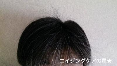 【お試し前】[uruotte]ハーバルエッセンス【爽】