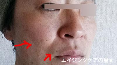 [サクラムアルジェ]モイスチャージェルコンプリートマスクの効果は?(お試し26日目)