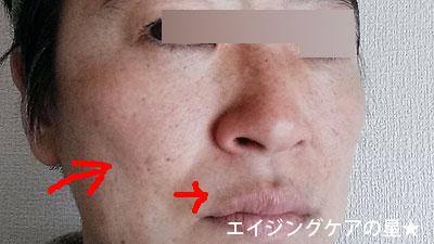 【お試し前】[サクラムアルジェ]モイスチャージェルコンプリートマスク