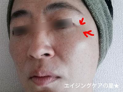 【デルメッドお試し30日目】シミやハリ