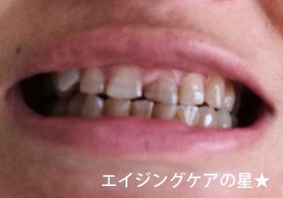 【使用63日後】[薬用]ちゅらトゥースホワイトニング