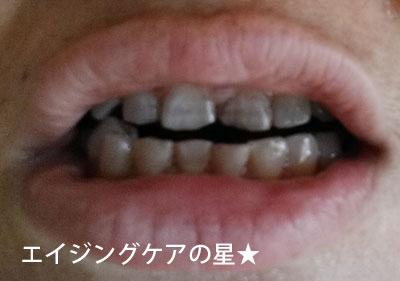 【使用前】[薬用]ちゅらトゥースホワイトニング