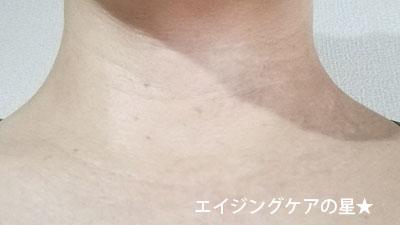 【お試し前】[ビーグレン]エイジングケアトライアルセット【首のしわ】