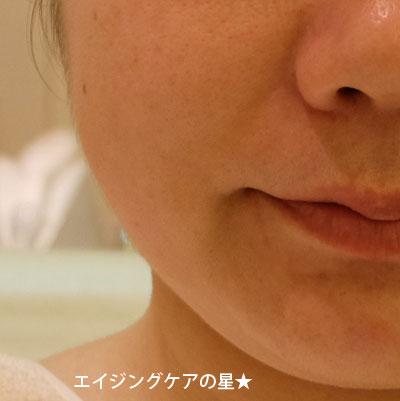 【体験前】シーズ・ラボ プロリフトRFコース