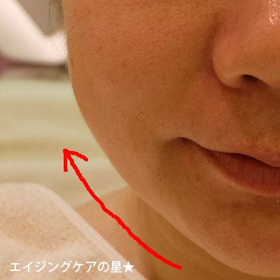 【体験後】シーズ・ラボ プロリフトRFコース