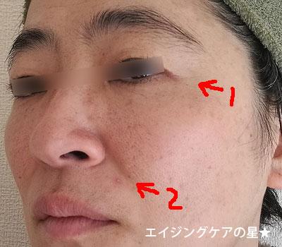 【一ヶ月使用後】 [ラミューテ]美肌セット