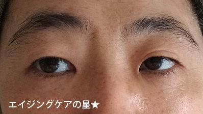 【使用前】[ビューテリジェンス]newaリフト