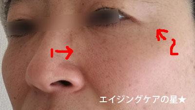 【14日間お試し後】シーズプロユースコスメティック