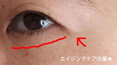 ▼【お試し14日目】[エトヴォス]バイタライジングライン(幹細胞コスメ)