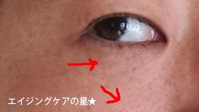 【使用1日目】[リルジュ]リカバリィエッセンス
