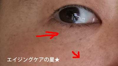 【使用9日目】[リルジュ]リカバリィエッセンス
