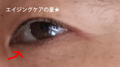【30日目の目元】ロスミンローヤル