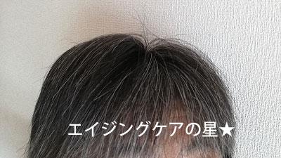 【使用前】ハーブガーデンシャンプー/コンディショナー