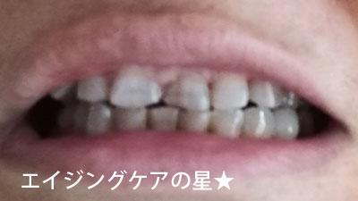 【使用前】薬用パールホワイトプロEXプラス