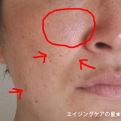 【使用16日目】[ビーグレン]ホワイトケアトライアルセット