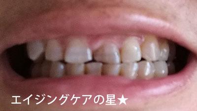 【使用40日目】薬用パールホワイトプロEXプラス