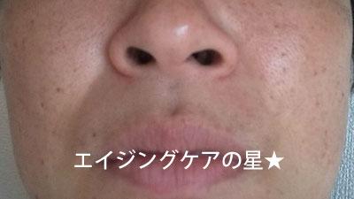 【5時間後】ヒアロディープパッチ