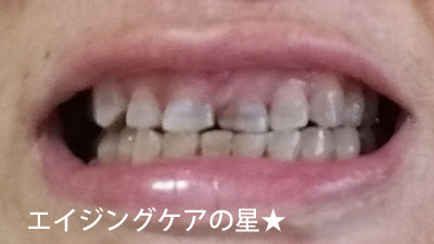 【使用前】薬用パールホワイトプロシャイン
